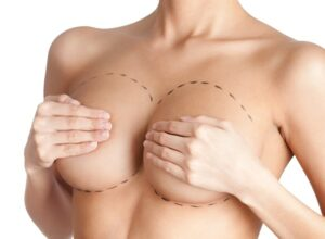 Breast Implants Pittsburgh
