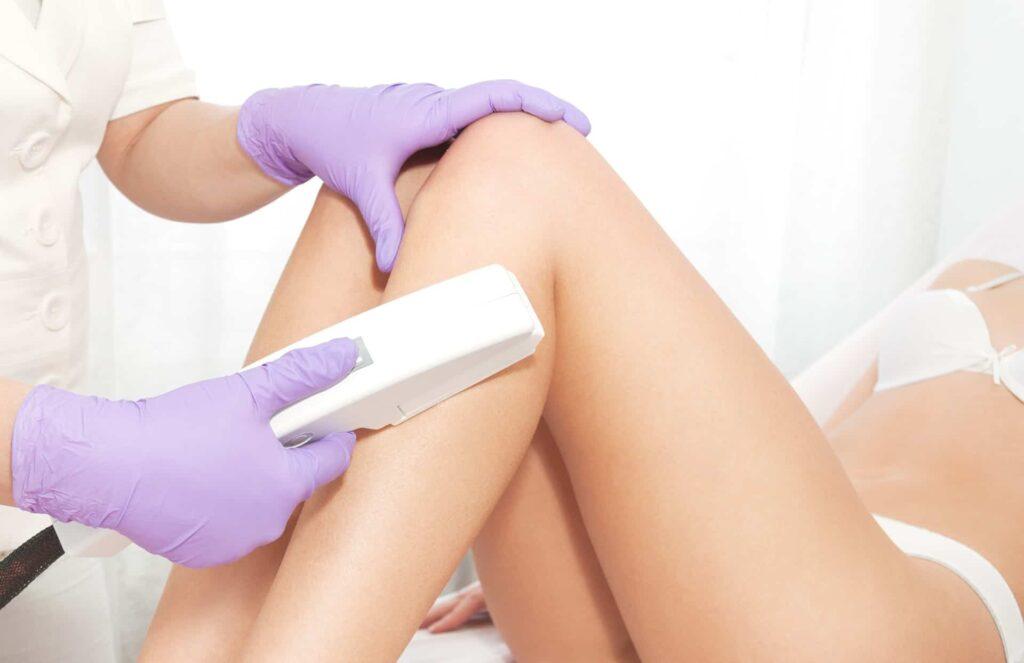 Laser epilation treatment