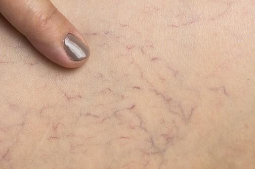 Varicose veins under woman skin
