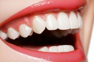 Lip Augmentation, Procedure, Lip enhancement,Surgery,Advanced Liposuction Center