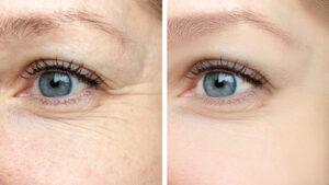 the skin center facial