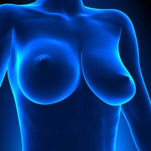 Implantes Mamarios  cirujano plástico