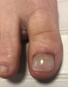 acrylic nails Pittsburgh