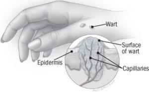 Warts